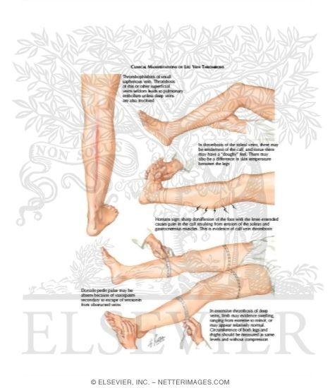 Manifestation of Leg Vein Thrombosis