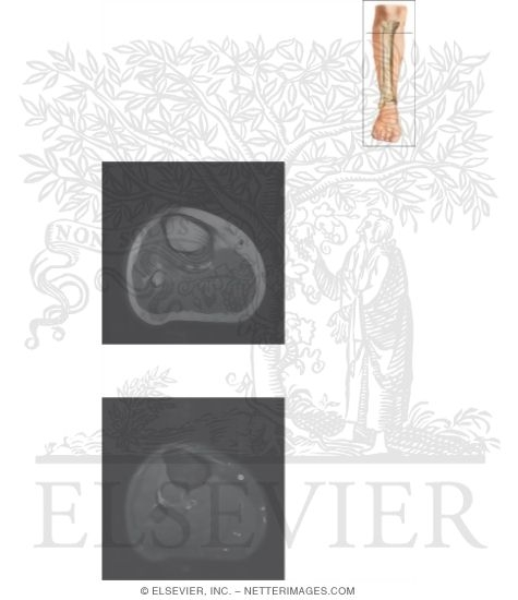 Illustration of Cross Section of the Lower Leg: Axial View from the Netter Collection