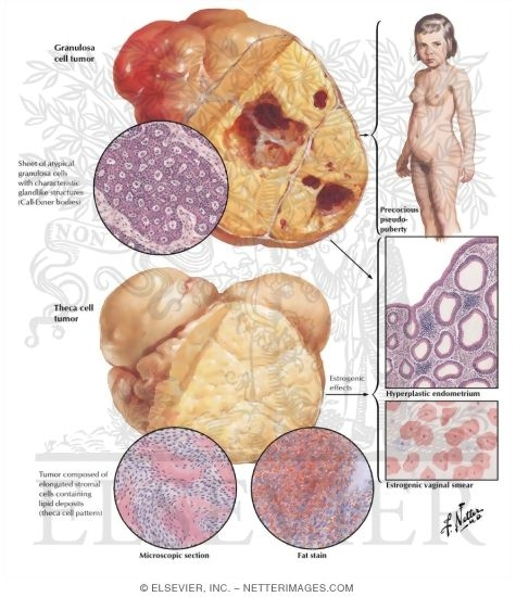 granulosa cell tumour Granulosa cell tumour is a rare gynaecological tumour of the ovary with recurrences many years after initial diagnosis and treatment evidence-based management of granulosa cell tumour of the ovary is limited, and treatment has not been standardised.