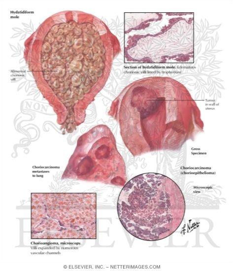 Trophoblastic Disease