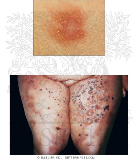 Dermatitis Herpetiformis and Pemphigus Vulgaris