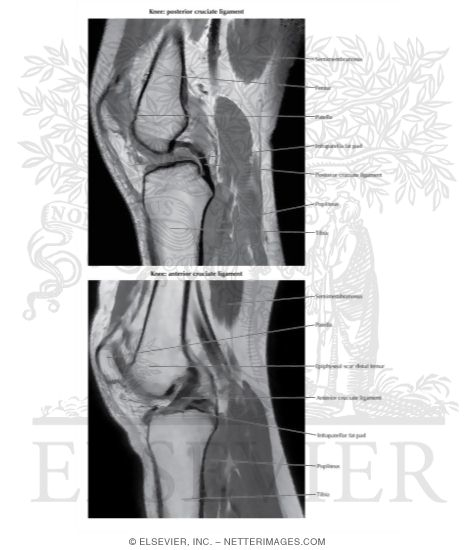 Knee: Anterior and Posterior Cruciate Ligaments