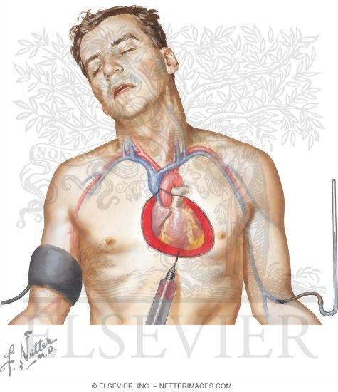 cardiac tamponade and pericardiocentesis, Skeleton