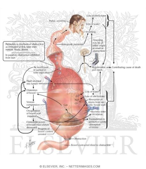 intestinal obstruction, adynamic ileus, Skeleton