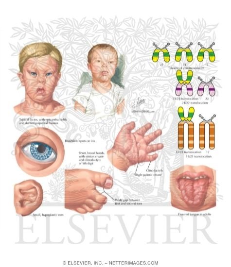 Illustration of Trisomy 21 (Down Syndrome) from the Netter Collection