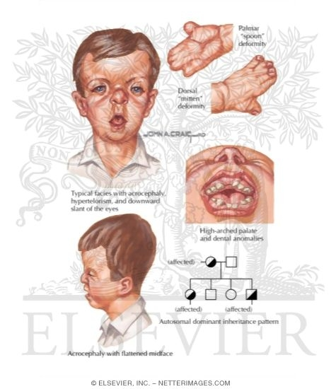 Illustration of Apert Syndrome from the Netter Collection