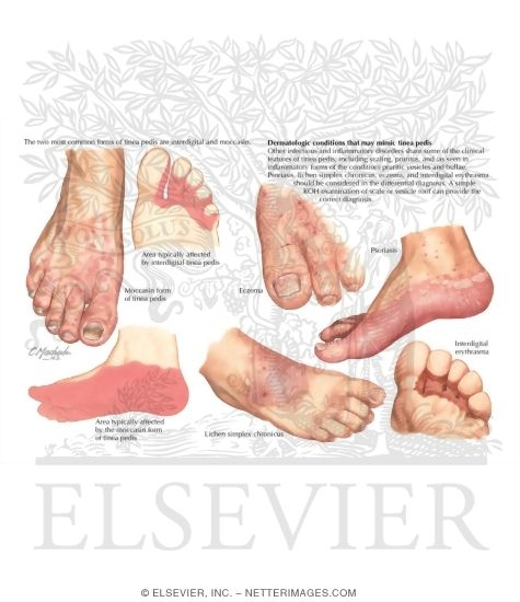 Illustration of Diagnosis of Tinea Pedis from the Netter Collection