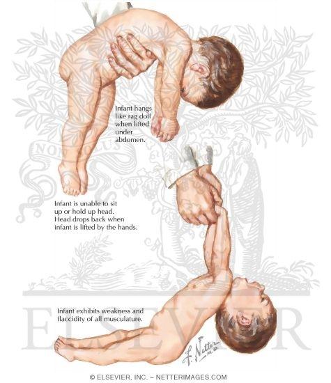 Floppy infant syndrom
