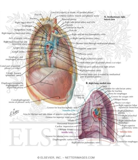 61708 on thoracic cavity diagram