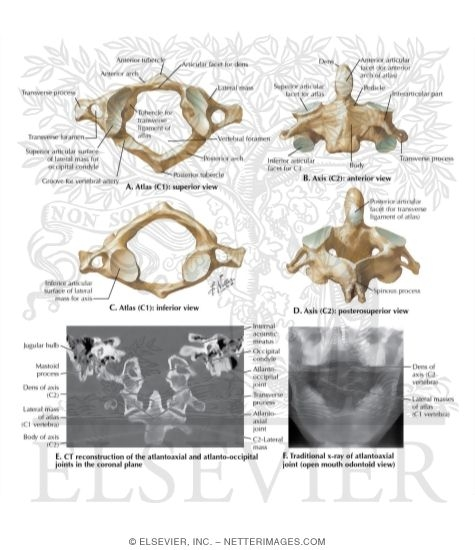 Cervical Vertebrae Unlabeled Atlas