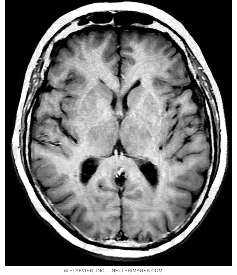 Weighted MRI Before Contrast