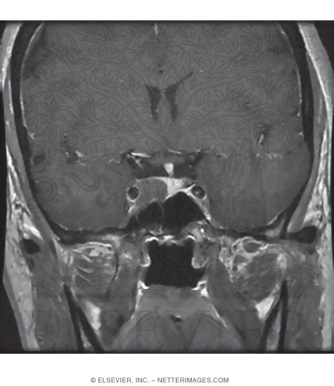 mri in the coronal plane through the sphenoid sinus nasopharynx