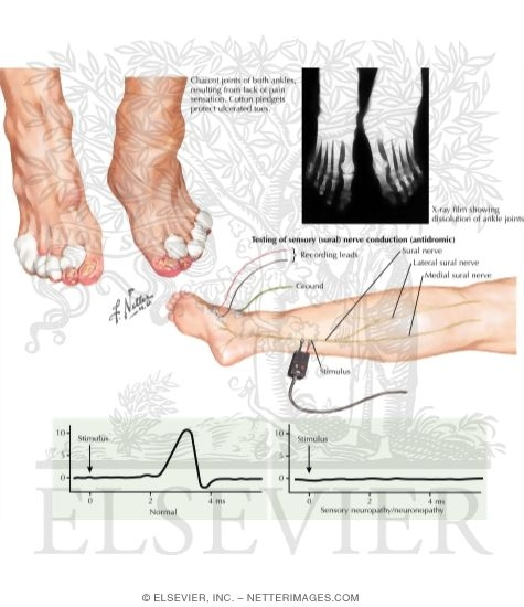 Illustrations in neurology jones 2e Hereditary motor neuropathy