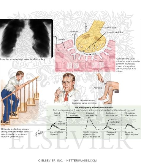 Illustration of Lambert-Eaton Syndrome from the Netter Collection
