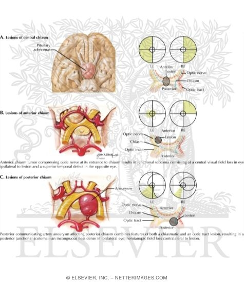 Affecting Optic Chiasm