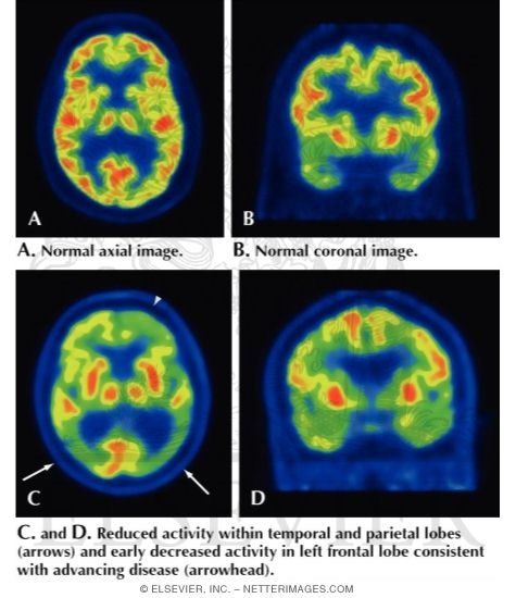 FDG-PET Typical Pattern for Alzheimer Disease
