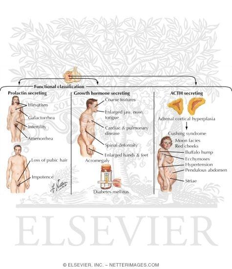 adenoma clinical manifestations, Human Body