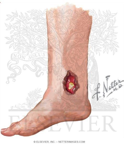 Buruli Ulcer Overlying A Patient's Medial Malleolus