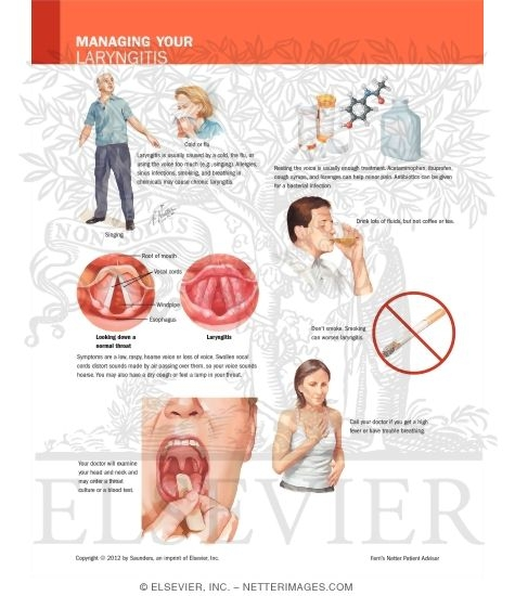 Managing Your Laryngitis
