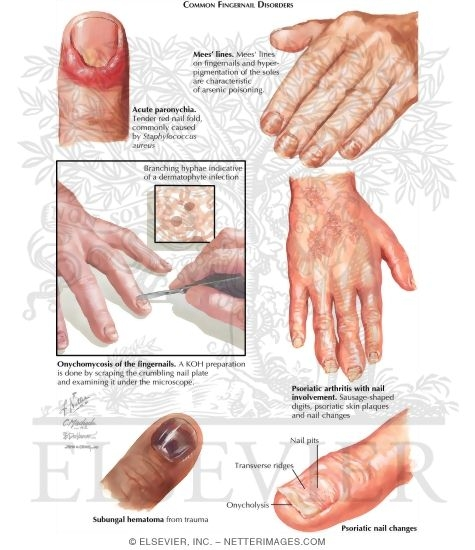 Nail Diseases And Disorders Done Welcome To Netter Images