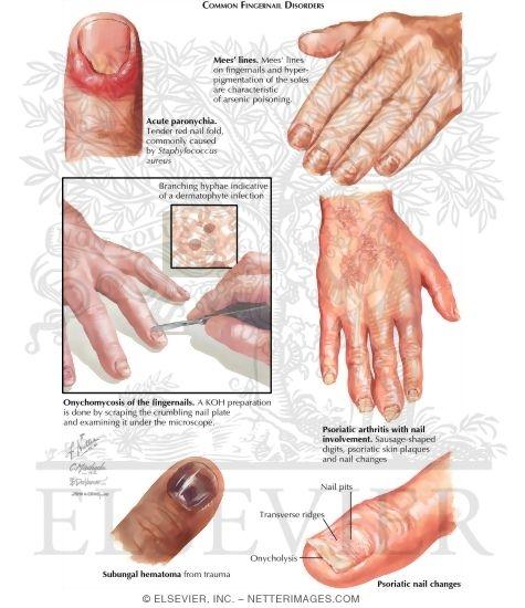 Nail Disorders [Slideshow]