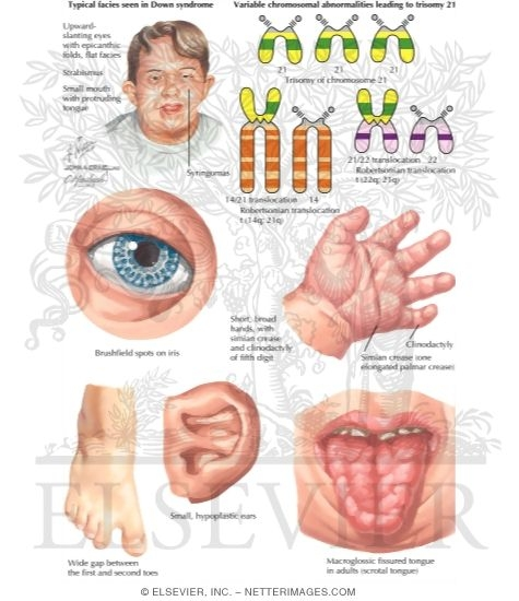 informative down syndrome Down syndrome is a genetic disease caused by three major factors, genetics, chromosome formation and cell information about down syndrome filed under: term papers tagged with: science.