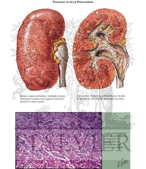 pyelonephritis: pathology, Skeleton