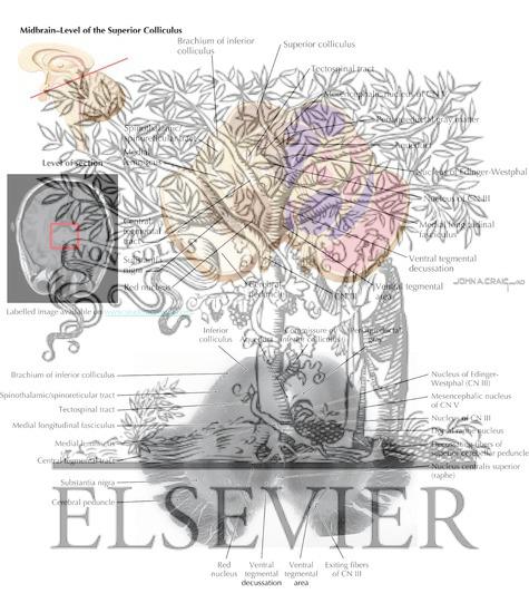 Brain Stem Cross-Sectional Anatomy: Section 12