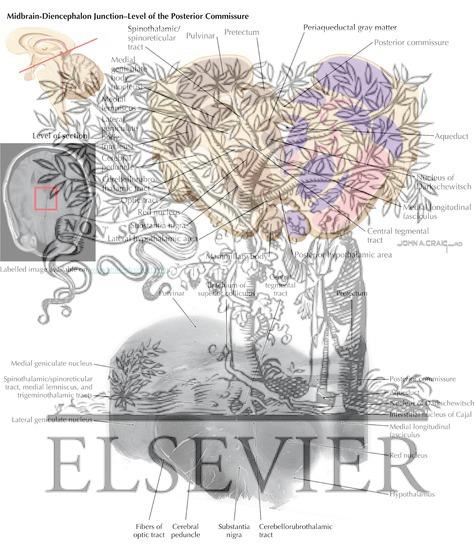 Brain Stem Cross-Sectional Anatomy: Section 14