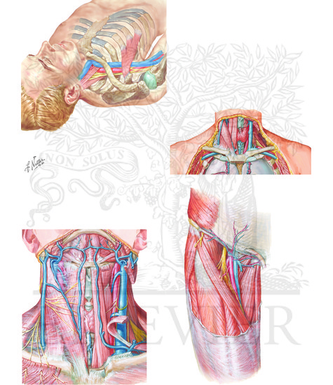 Subclavian Vein A Internal Jugular Vein B And Femoral Vein C