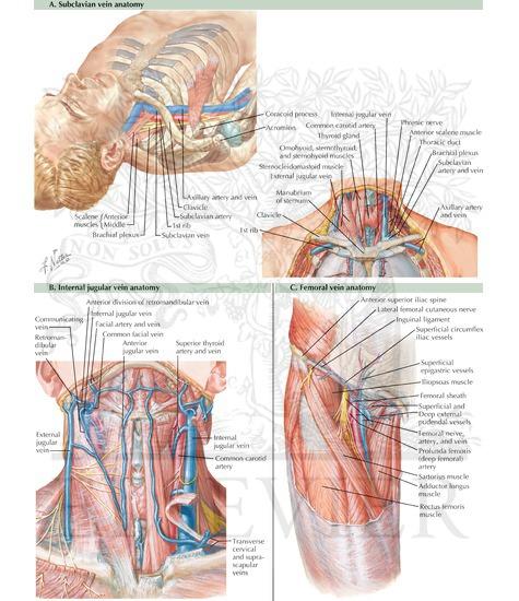Subclavian vein (A), internal jugular vein (B), and femoral vein (C ...
