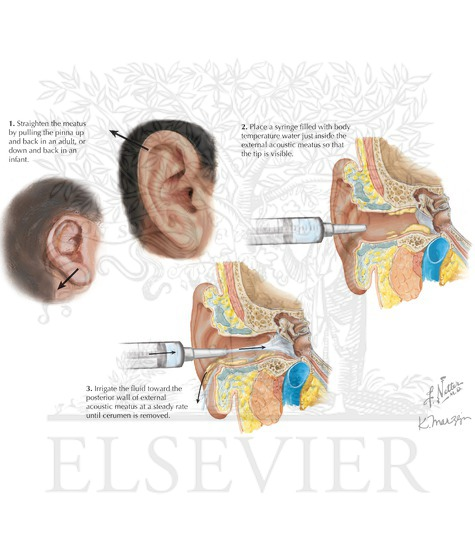 removal: ear irrigation, Skeleton