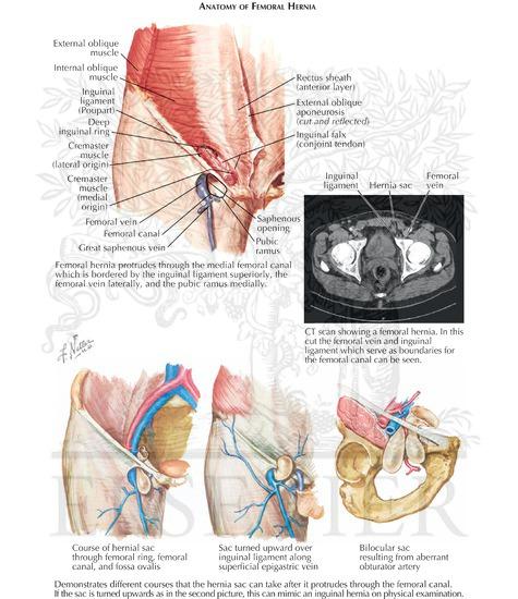 Femoral Hernia: Anatomy of Femoral Hernia