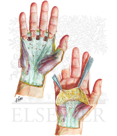 Wrist and Hand: Superficial Palmar Dissections