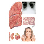 Progressive Systemic Sclerosis (PSS; Scleroderma); Lung Involvement