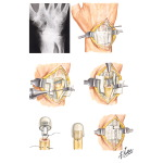 Implant Resection Arthroplasty for Distal Radioulnar Joint