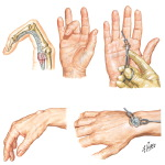Stenosing Tenosynovitis of Flexor Tendons of Fingers (Trigger Finger)