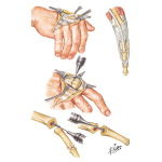 Implant Resection Arthroplasty for Metacarpophalangeal Joints
