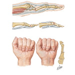 Fracture of Proximal and Middle Phalanges