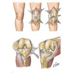 Technique for Total Knee Replacement
