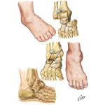 Dislocation of Subtalar Joint and Talus