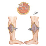 Incisions for Compartment Syndrome of Leg
