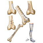 Reconstruction or Stabilization After Partial Excision or Curettage (Fracture Prophylaxis)