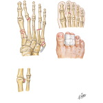 Injury to Metatarsals and Phalanges