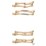 Fracture of Both Forearm Bones