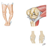 Medial Release for Varus Deformity of Knee