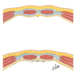 Rectus Sheath: Cross Sections