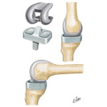 Posterior Stabilized Knee Prosthesis