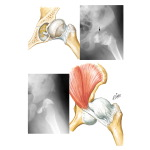 Adaptive Changes in Dislocated Hip Interfering with Reduction
