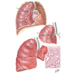 Pulmonary Agenesis, Aplasia, and Hypoplasia